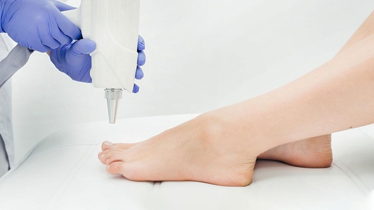 Лазерное лечение ногтевого грибка